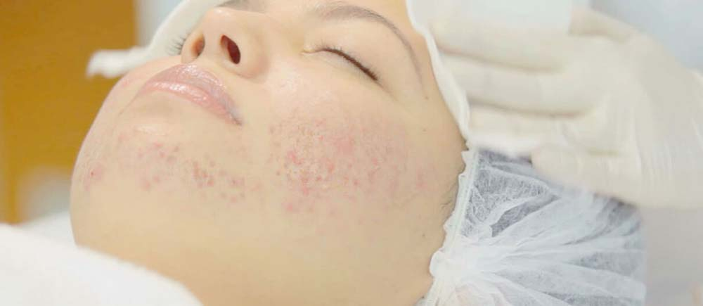 Acne behandeling Amsterdam Derma2care