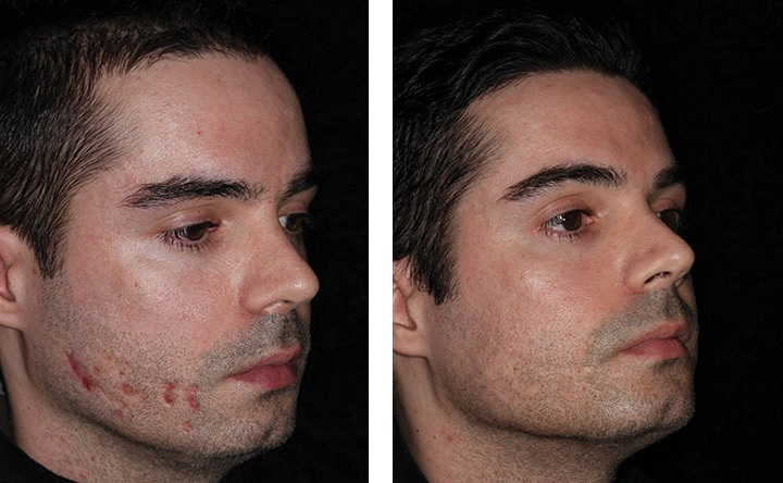 laser voor littekens