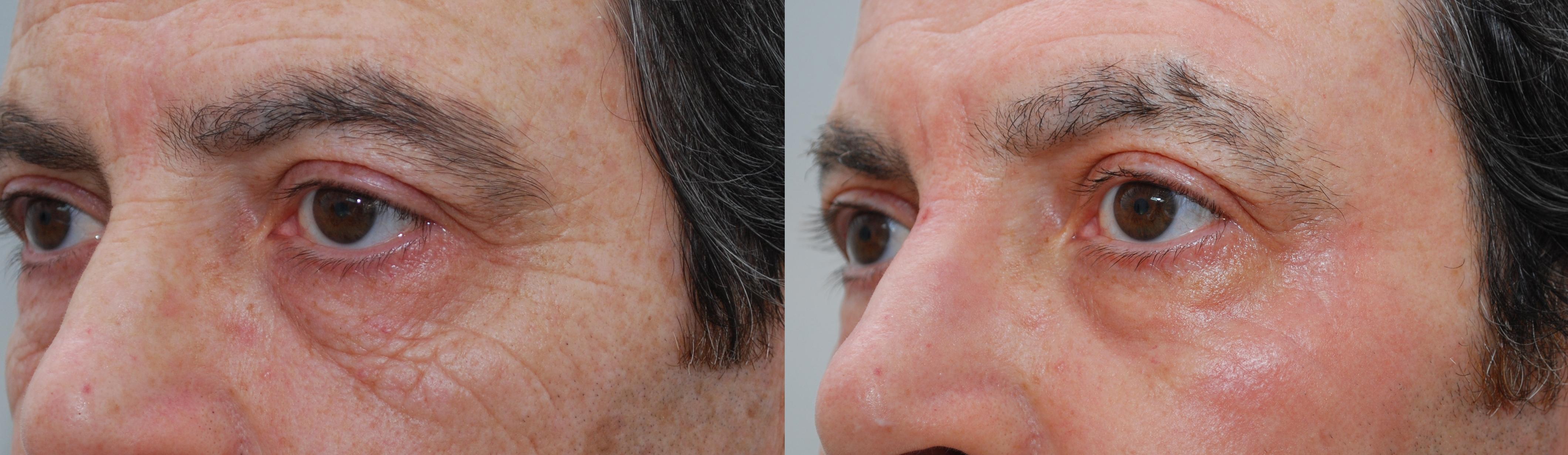 Voor en na ClearLift Derma2Care