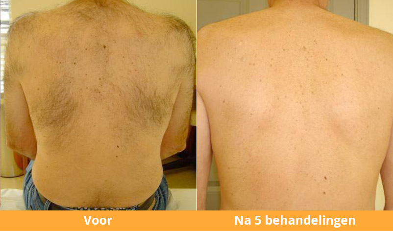 before_after(3)