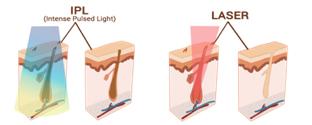 verschil ipl en laser
