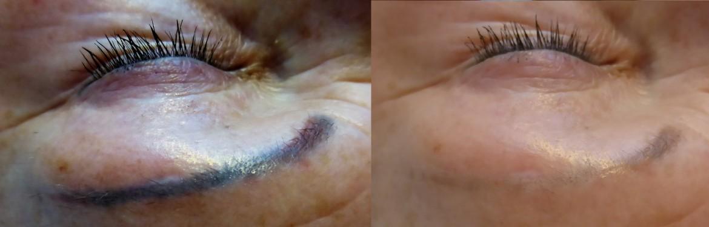 Remove permanente make-up