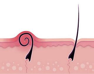 ingegroeide haren