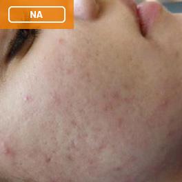 Acne na de behandeling