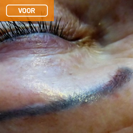 ongewenste permanente make-up voor 1