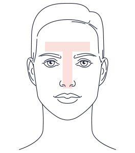 acne in het gezicht