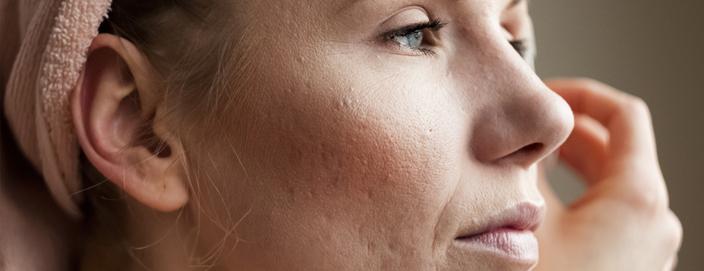 co2 laser bij acne