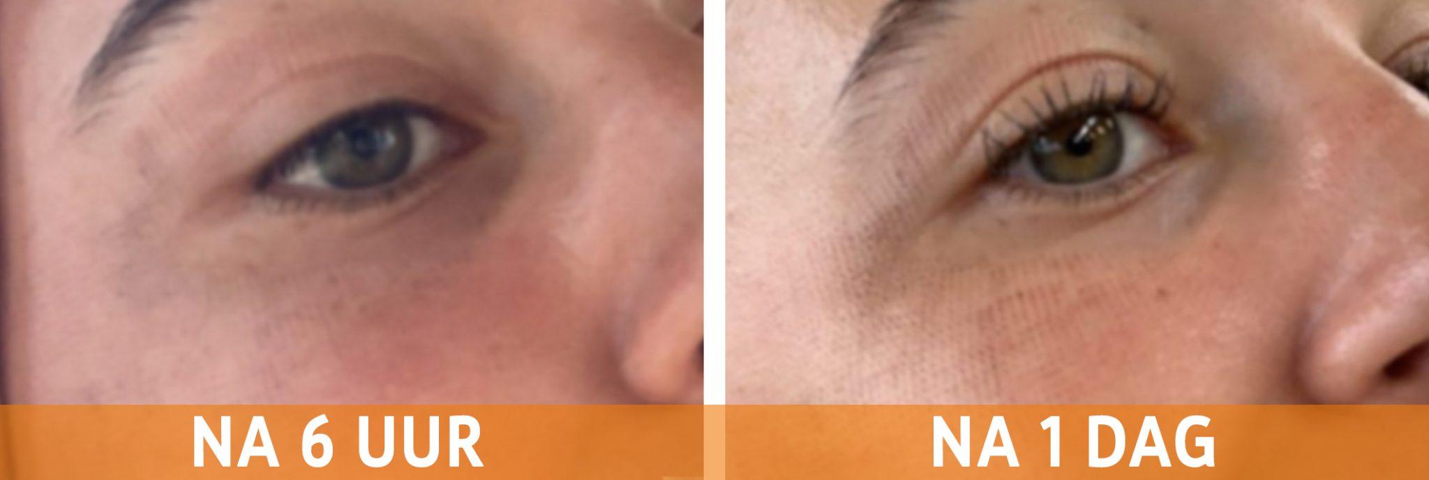 Wat is het verschil tussen een ooglift en een ooglidcorrectie?