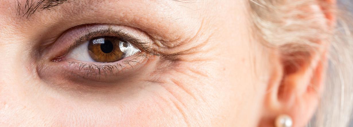 Fabels en feiten over een ooglift